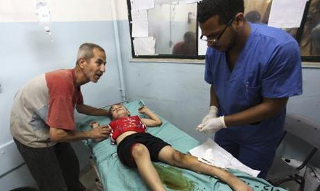 Seorang anak yang dirawat di salah satu RS di Khan Younis di Gaza Selatan bulan Juli lalu, saat kejahatan agresi zionis berlangsung. Foto: Reuters