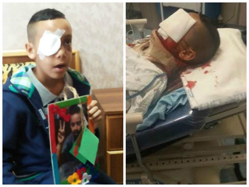 Salih Mahmud, 10 tahun, sengaja ditembak matanya hingga buta. Foto: PIC