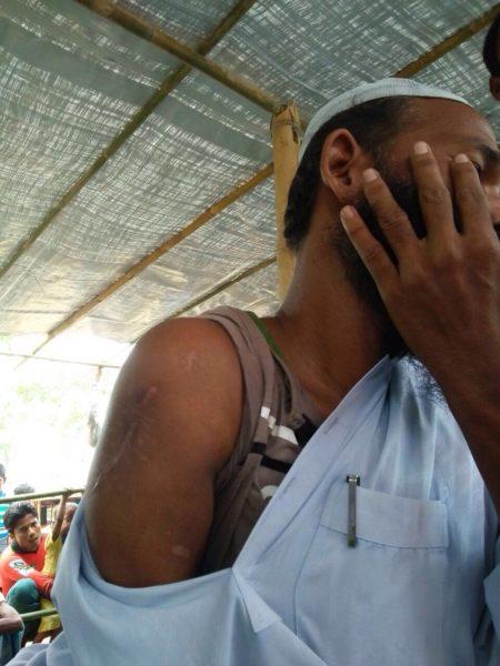 Habib Husen, 42 tahun, salah satu dari puluhan pasien yang terkena kezhaliman pemerintah kafir Myanmar. Di Kutupalong, dokter memeriksa bekas luka tembak (sudah dioperasi di Bangladesh) di lengan kanannya dan memberikan beberapa obat, serta saran penyembuhannya lebih lanjut. Foto: Sahabat Al-Aqsha | SA4Rohingya