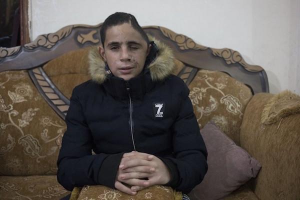Mohammed Tamimi (15), ditembak di kepala dengan peluru berlapis karet oleh serdadu Zionis, Nabi Saleh, Tepi Barat, 5 Januari 2018. Foto: Oren Ziv/Activestills.org