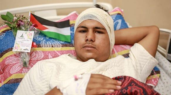 Mohammed Othman, salah satu dari 1.500 lebih warga Palestina yang terluka saat demonstrasi Jum'at (30/3) lalu. Foto: Hosam Salem/Al Jazeera