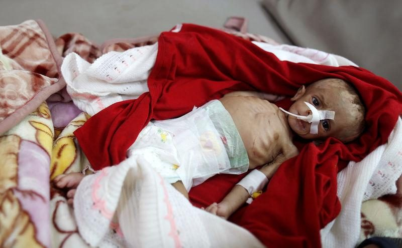 Bayi yang kekurangan gizi terbaring di tempat tidur bangsal malnutrisi di rumah sakit al-Sab'een, Sanaa, Yaman, pada 10 September 2018. Foto: Reuters/Khaled Abdullah