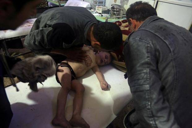 Seorang anak dirawat di rumah sakit di Douma, Suriah, setelah terjadinya serangan kimia pada 7 April 2018. Foto: White Helmets/Reuters